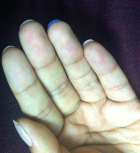 Today in age!- This may not seem long for some, but I assure you my nails never grew past the skin my entire life! I am ecstatic with their progress and those who know me can tell the difference immediately.